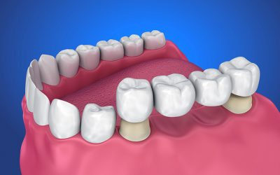 When False teeth kisses True teeth