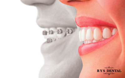 Buy yourself a beautiful smile with cosmetic dentistry services, Surrey