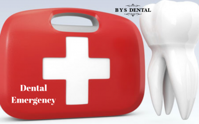 Hitchhiker's Guide About Dental Emergencies: Types of Emergencies and How to Handle Each