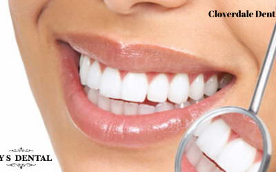 Top 15 Benefits of Dental Cleaning