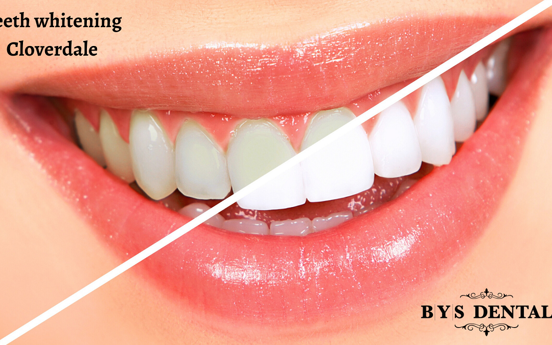 Teeth whitening Cloverdale