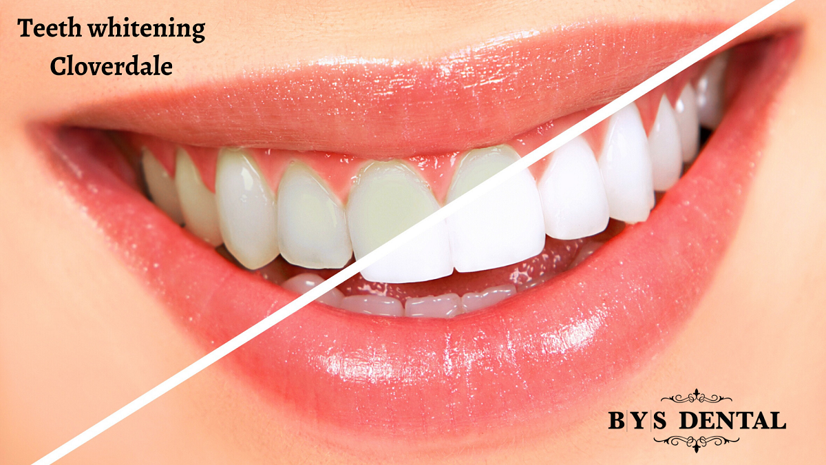 Learn 6 Integral Teeth Whitening Safety Tips - BYS Dental