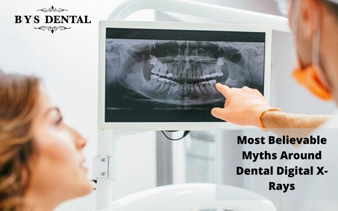 dental digital x ray surrey bc
