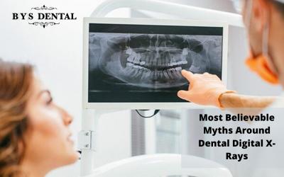5 Most Believable Myths Around Dental Digital X-Rays