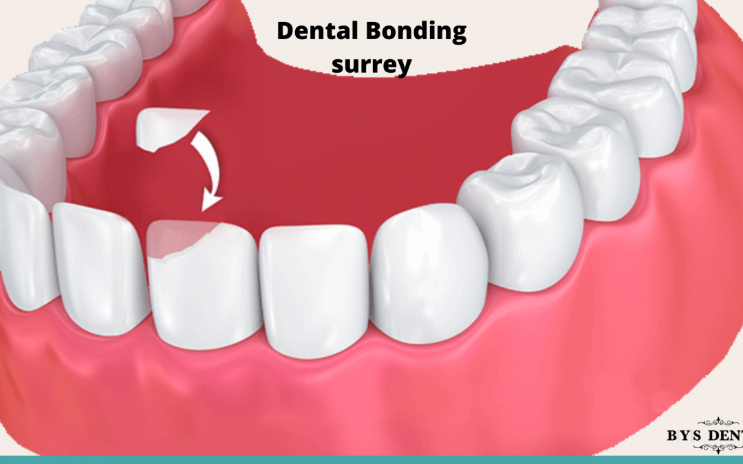 Dental Bonding Surrey